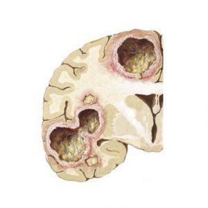 Абсцесс головного мозга: причины, симптомы, лечение, прогноз