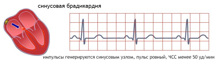 Синусовый ритм: что это в заключении ЭКГ, расшифровка и норма