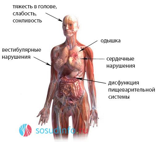 Всд по ваготоническому типу у детей лечение