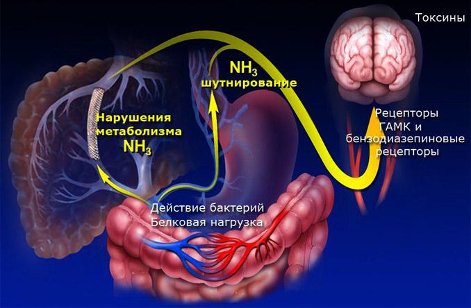 патогенез печеночной энцефалопатии