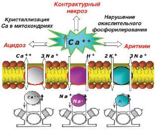 схема перегрузки кардиомиоцитов ионами кальция