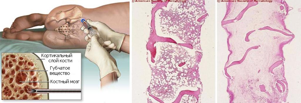 гистологическая картина трепанбиопсии костного мозга в норме и при апластической анемии
