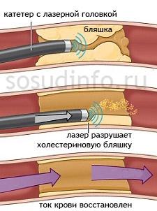 Лазерная ангиопластика