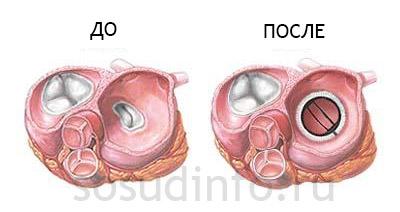 протезирование митрального клапана
