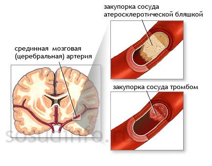 Возникновение мозговой ишемии