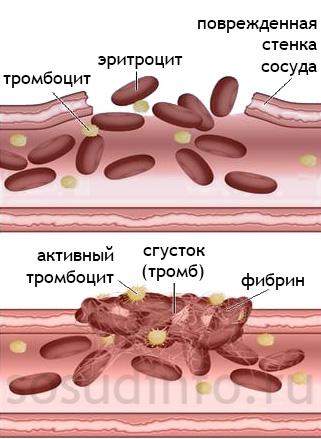 Образование тромба