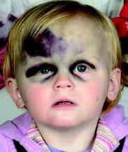 Ребенок с имунной тромбоцитопенией после падения на плиточный пол. Концентрация тромбоцитов на момент травмы: 9*10⁹ т/л