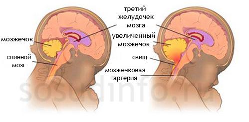 Здоровый мозжечок (слева) и мальформация Киари (справа)