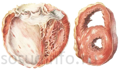 кардиосклероз очаговый и диффузный