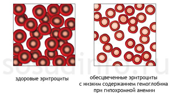 Гипохромная анемия при лейкозе