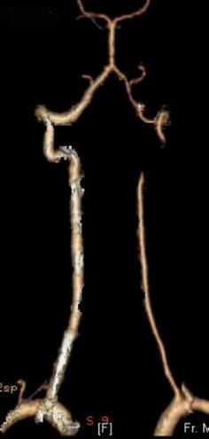 Гипоплазия одной из позвоночных артерий на снимке