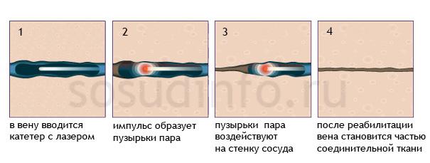 Лазерная флебэктомия (лазерная коагуляция)