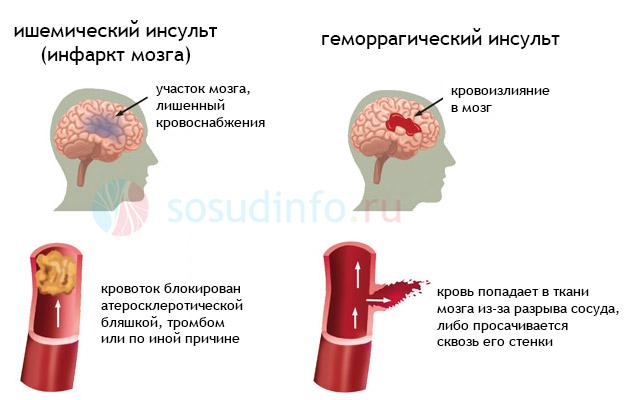 Инсульт: ишемический и геморрагический