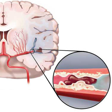 закупорка артерии мозга тромбом при ишемическом инсульте