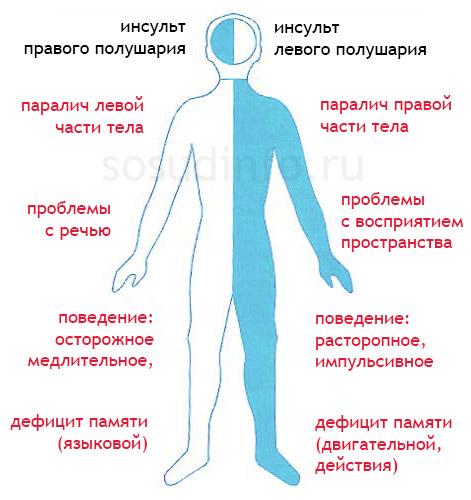 Инсульт левой и правой стороны