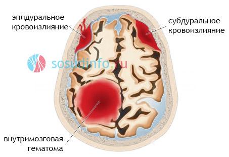 Субдуральное и эпидуральное кровоизлияния в мозг