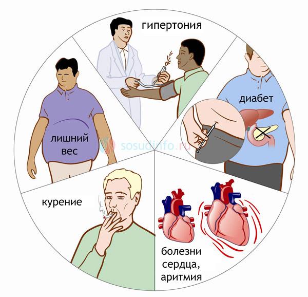 Ключевые факторы риска инсульта