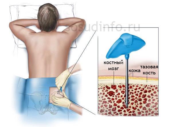 Фото: биопсия для диагностики лейкоза