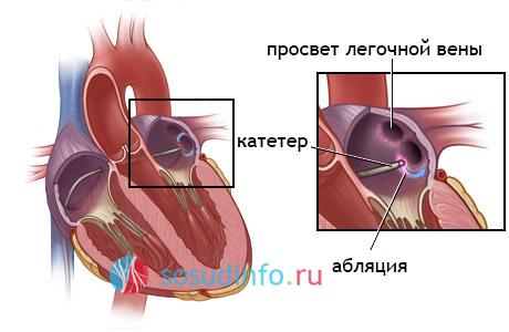 Радиочастотная абляция РЧА