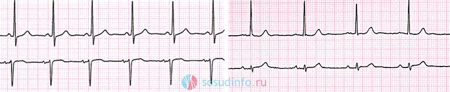 Нормальный синусный ритм (слева) и брадикардия (справа)