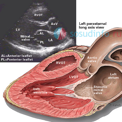 кальциноз митрального клапана