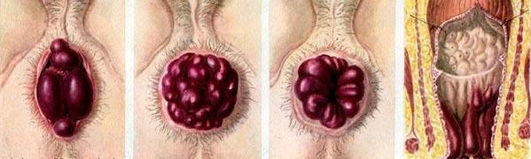 Яркость проявлений тромбоза геморроидальных узлов