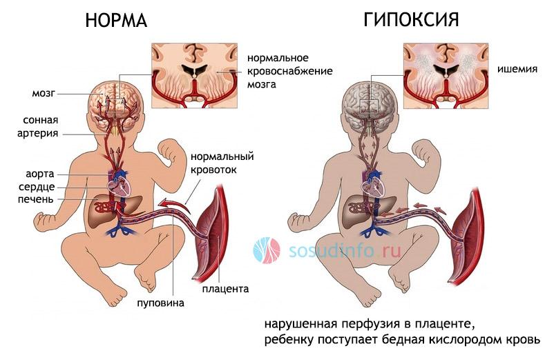 гипоксия головного мозга у плода