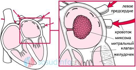 Миксома 2 типа в левом предсердии