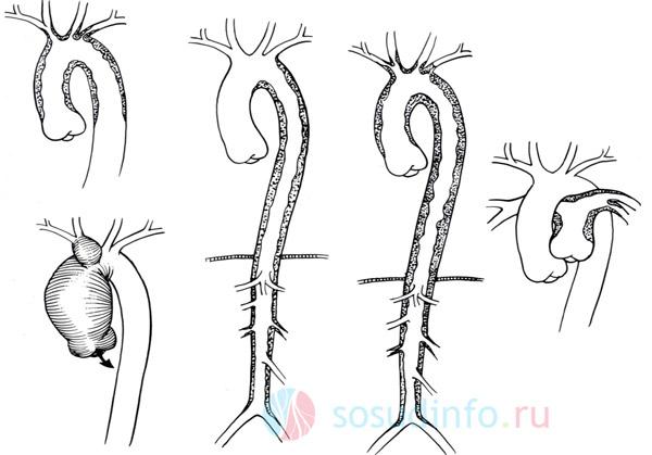Различные проявления артериита Такаясу