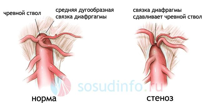 экстраващальная компрессия стеноз чревного ствола