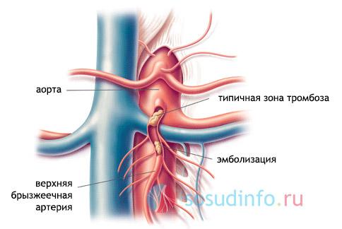 Мезентериальный тромбоз