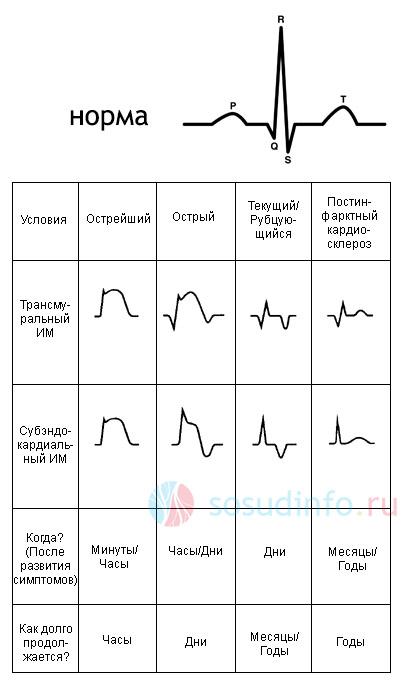 формы инфаркта на ЭКГ