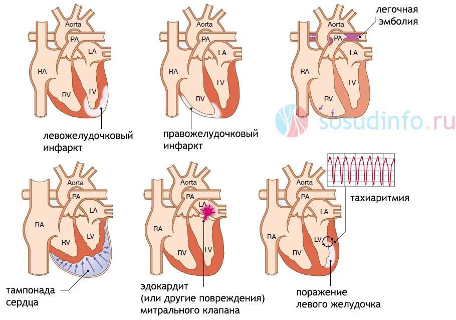 патологии-причины развития кардиогенного шока и их локализация