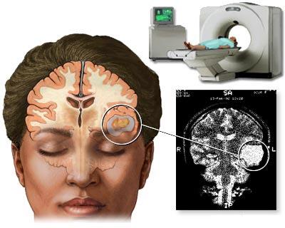 патологический участок мозга на снимке КТ