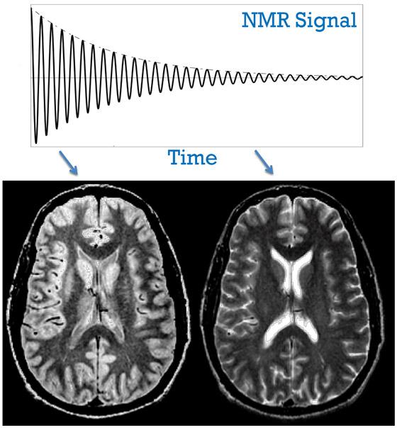 получение различных срезов при МРТ мозга