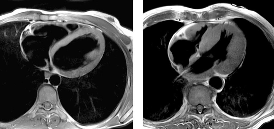 Здоровое сердце (слева) и хорошо выявляемая с помощью МРТ гипертрофия левого желудочка (справа)