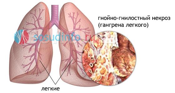 влажная гангрена внутренних органов на примере легких
