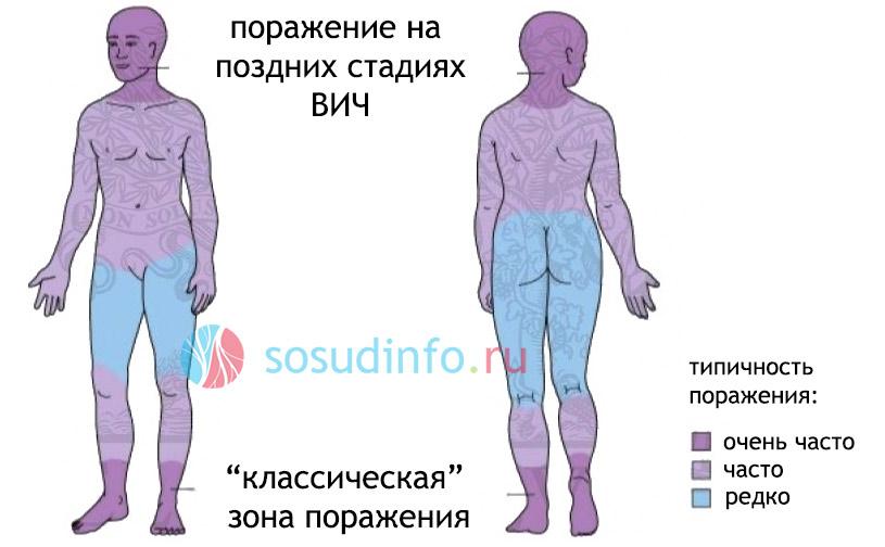 типичные зоны поражения тела саркомой Капоши