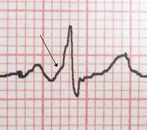 На ЭКГ стрелкой указан характерный признак ВПВ-синдрома – «дельта»-волна в начале желудочкового комплекса