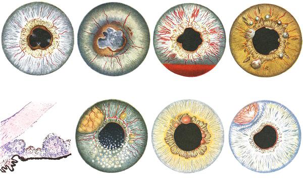 разнообразие форм поражений глаз