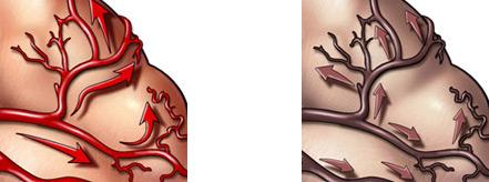 в основе ДЭП - нарушение кровоснабжения мозга вследствие одного или нескольких факторов