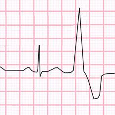 Тригеминия сердца что это такое