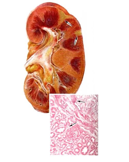 на рисунке: белые инфаркты почек; на макропрепарате внизу - участок белого инфаркт, вверху - геморрагический пояс по периферии