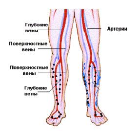 Флеботромбоз глубоких вен нижних конечностей