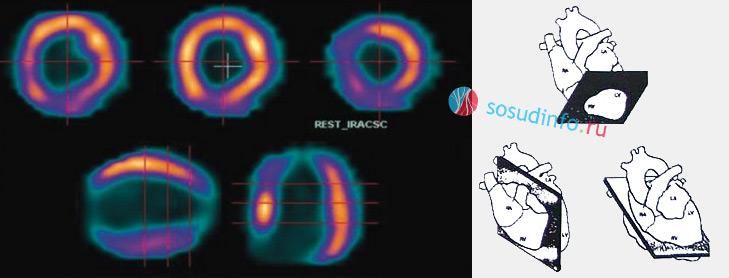 оценка накопления РФП в миокарде по 3 осям: короткой (верхний ряд), длинной вертикальной и длинной горизонтальной (нижний ряд)