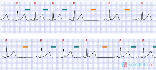Изменение частоты сокращений в зависимости от вдоха (зеленый цвет) и выдоха (оранжевый цвет)