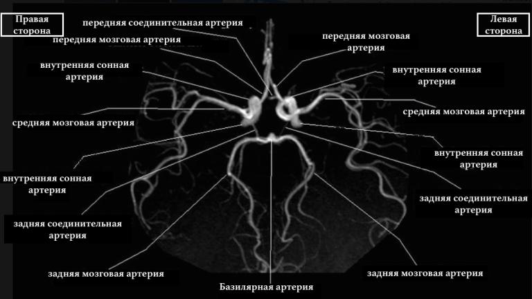 Трифуркация левой внутренней сонной артерии