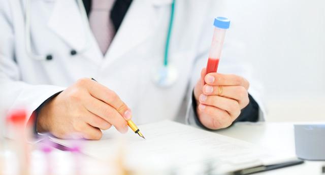 Анализ крови сссг
