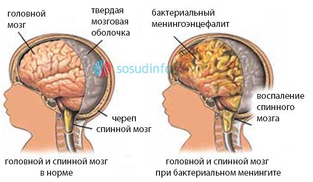 Менингоэнцефалит менингит энцефалитный: причины, симптомы, диагностика и лечение