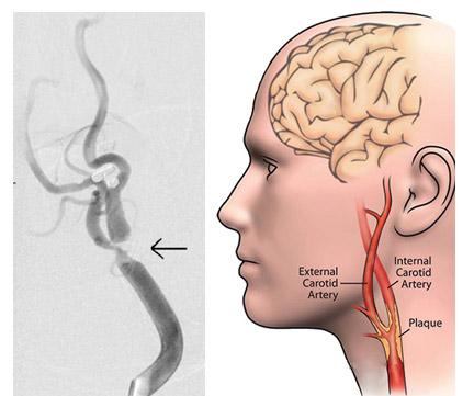 стеноз сонной артерии из-за атеросклероза